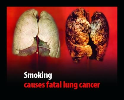 Smoking - A Cancer Trigger